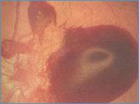 Классификация диабетической ретинопатии: пролиферативная, непролиферативная, её причины, симптомы, проявления у детей, диагностика, лечение, осложнения, профилактика