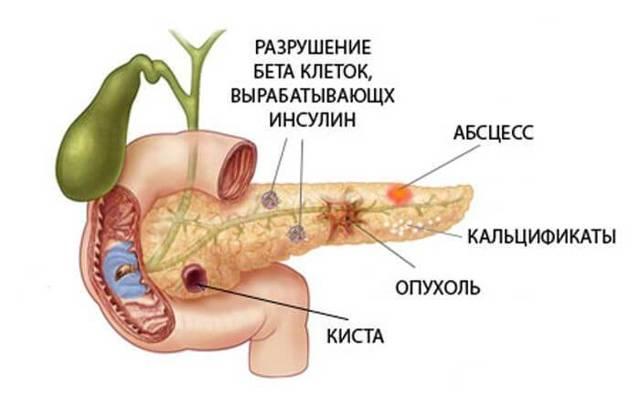 Деформация поджелудочной железы