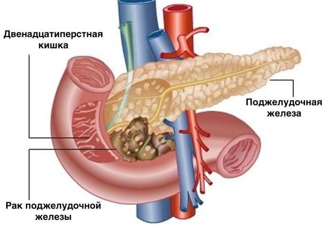 Рак головки поджелудочной железы: что делать и каков прогноз