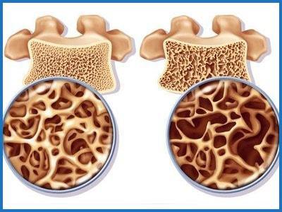 Остеопения и остеопороз: в чем разница, отличия в лечении