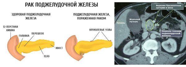 МРТ поджелудочной железы: подготовка к обследованию, показания, что показывает - диффузные изменения, рак, кисты, размеры, КТ или МРТ, с контрастом