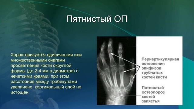 Остеопороз: рентген, признаки на снимке кисти, позвоночника, коленного сустава, пятнистый