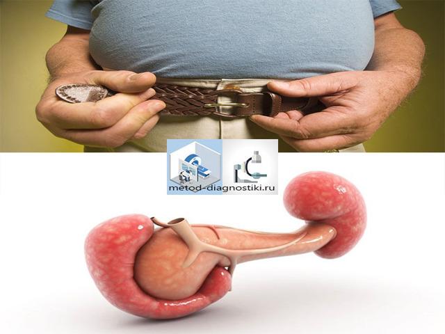 Образования, отеки головки поджелудочной железы - лечение (удаление)