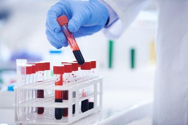 Анализ крови на ХГЧ: покажет ли на ранних сроках беременность, как сдавать, результаты, сколько делается, натощак или нет, экспресс метод