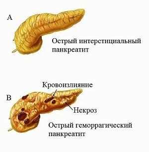 Стадии панкреатита (начальная, обостренная)