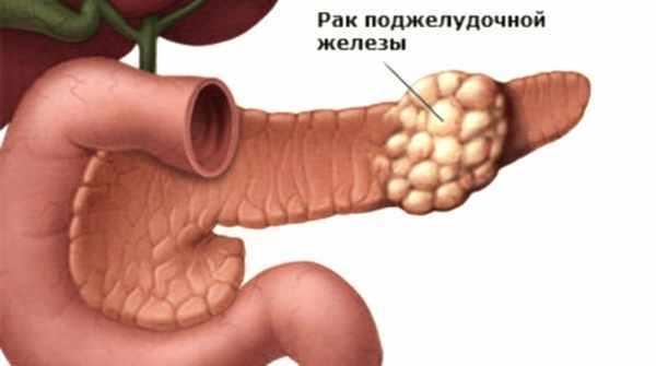 Рак поджелудочной железы на УЗИ: видна ли опухоль