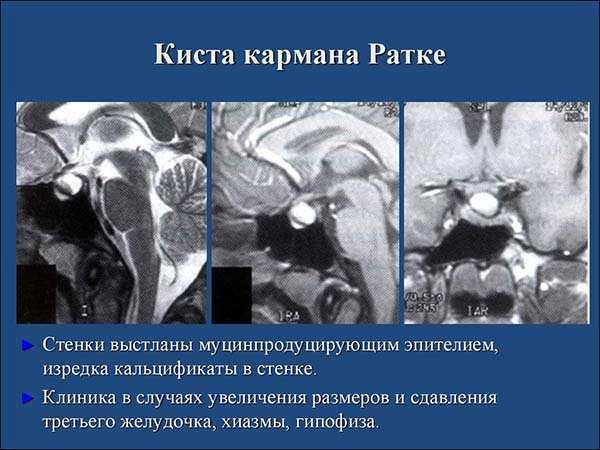 Киста Ратке гипофиза: как проявляется образование кармана, лечение его