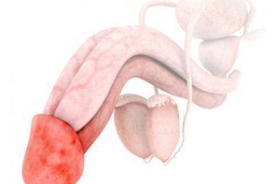 Воспаления при сахарном диабете: чем опасно крайней плоти, половых губ, ноги, рожистое, почек, легких, суставов, кожи, ногтя, воспаление легких