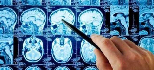 Шишковидная железа головного мозга: размеры эпифиза, строение и функции, особенности у детей