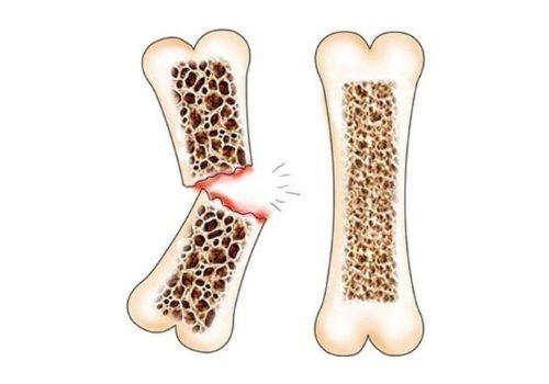 Уколы при остеопорозе: какие делают у пожилых женщин, инъекции для лечения позвоночника