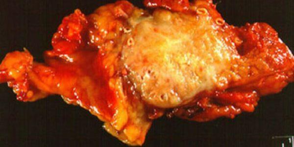 Аденома и аденокарцинома поджелудочной железы - лечение и симптомы