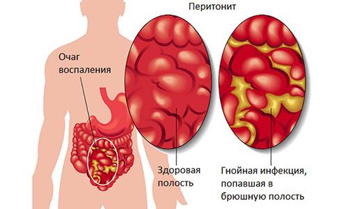 Хронический вторичный панкреатит - лечение и симптомы