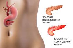 Патогенез острого панкреатита (этиология)