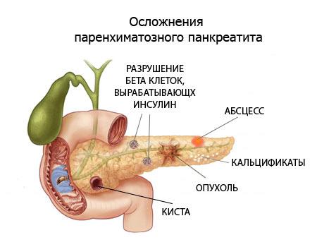 Лечение кисты поджелудочной железы народными средствами