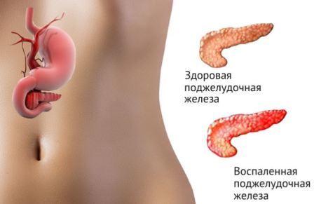 Как снять воспаление поджелудочной железы в домашних условиях