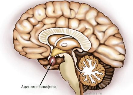 Акромегалия: причины и симптомы болезни, синдрома у детей, женщин, гормоны, диагностика, лечение