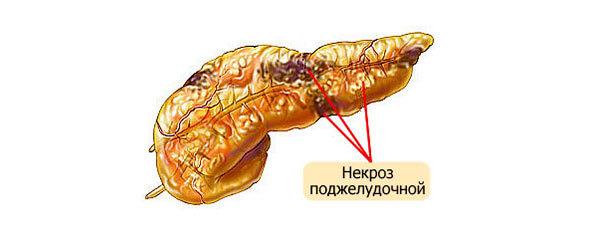 Диета при панкреонекрозе: примерное меню после операции