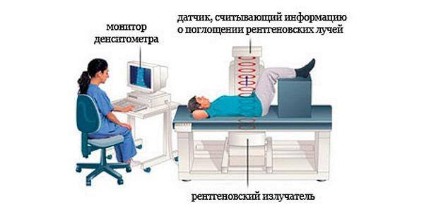 Денситометрия при остеопорозе: зачем назначают обследование, критерии диагностики, степени и показатели заболевания, какая лучше выявит, как часто делать