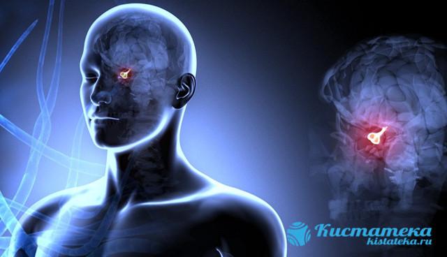 Гипофиз: головная боль, которая возникает при аденоме, микроаденоме, эпилепсия