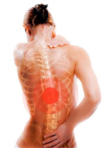 Причины остеопороза: почему возникает у женщин, мужчин, у молодых и детей, подростков. Остеопороз позвоночника, костей