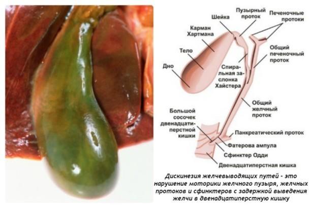 Привкус во рту при панкреатите: как устранить горечь?