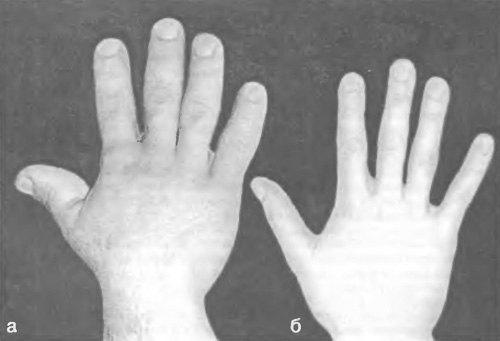 Гигантизм: причины появления, симптомы и проявления у детей, у взрослых людей