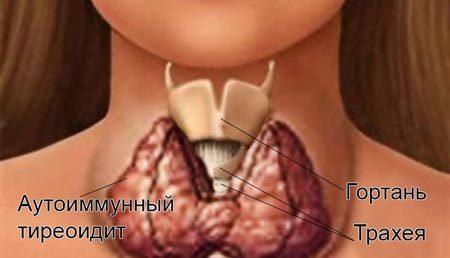 Аутоиммунный тиреоидит: чем страшно заболевание, симптомы зоба Хашимото, гормоны, хронический у взрослых, лечение