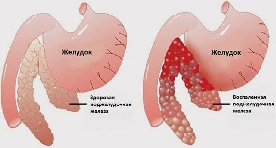 Можно ли сало при панкреатите: норма в сутки