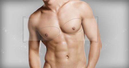 Гинекомастия у мужчин: операция по удалению как вариант лечения, после хирургического вмешательства, лазером, если ложная