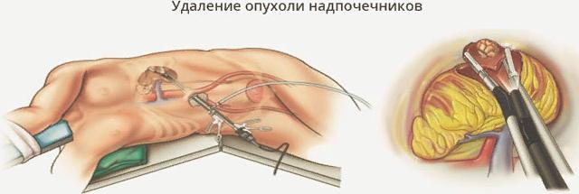Андростерома надпочечников: основные симптомы, причины у женщин и мужчин, лечение