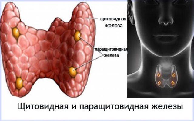 Гиперпаратиреоз: лечение синдрома, болезни, причины, симптомы у детей, диагностика, первичный и вторичный