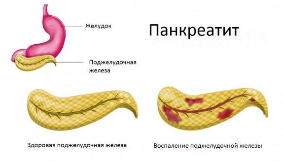 Кукуруза при панкреатите: можно или нет консервированную