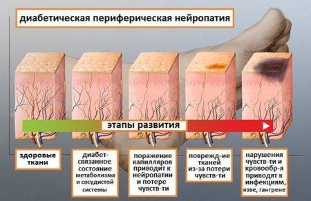 Диабетическая нейропатия нижних конечностей: основные симптомы, лечение, чем обезболить ноги, гимнастика