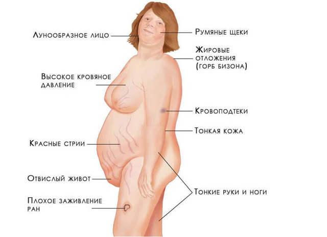 Кортикостерома надпочечника: причины, симптомы, удаление