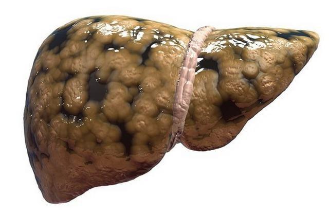 Стеатоз поджелудочной железы