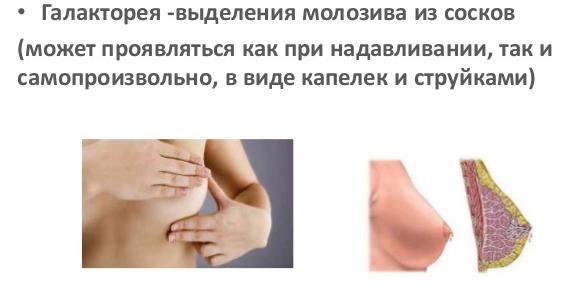 Галакторея и ее лечение: основные причины синдрома, если не связанная с деторождением, лекарственная, при нормальном пролактине, патологическая, при гипотиреозе, симптомы у мужчин и женщин, препараты