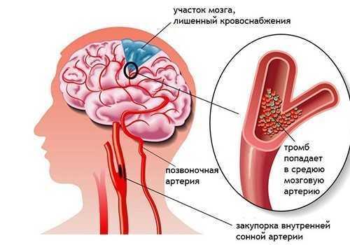 Влияние алкоголя на поджелудочную железу
