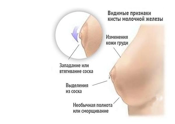 Боли вилочковой железы: почему болит при надавливании у взрослых, в ее области у детей