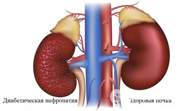 Диабетическая нефропатия: классификация, стадии, симптомы, диагностика, лечение у детей и взрослых, осложнения