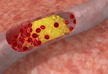 Гангрена при диабете: стадии, начальная поражения ноги, пальцев, лечение нижних конечностей, сухая, лечение и ампутация, прогноз, сколько живут при сахарном диабете