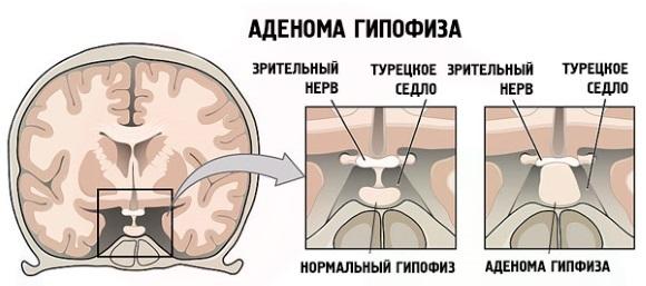 Народное лечение аденомы гипофиза: какие самые эффективные варианты