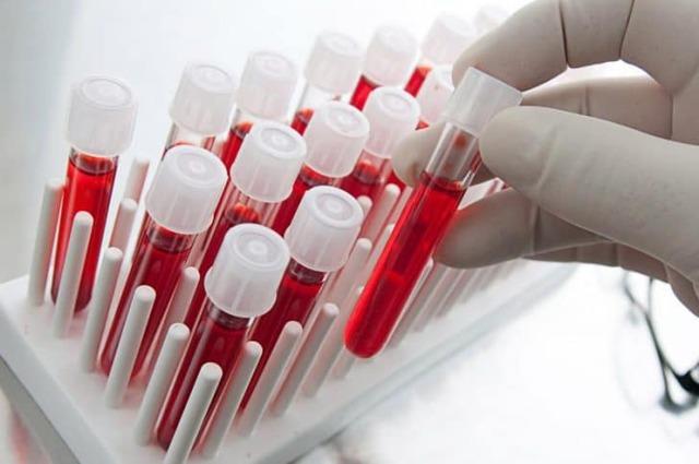Анализ на женские гормоны при климаксе: как правильно сдавать кровь, данные при менопаузе