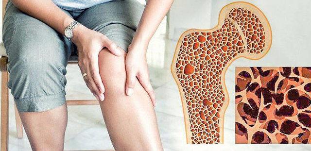Переломы при остеопорозе: почему у ребенка, при идиопатическом, компрессионый и патологический лодыжки, костей бедра, позвоночника, как срастаются