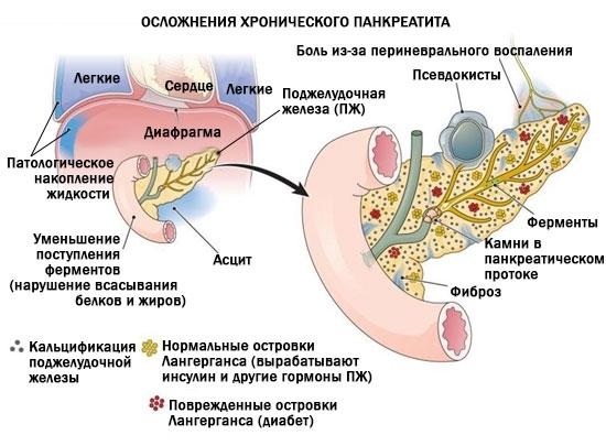 Хронический панкреатит: код по МКБ-10