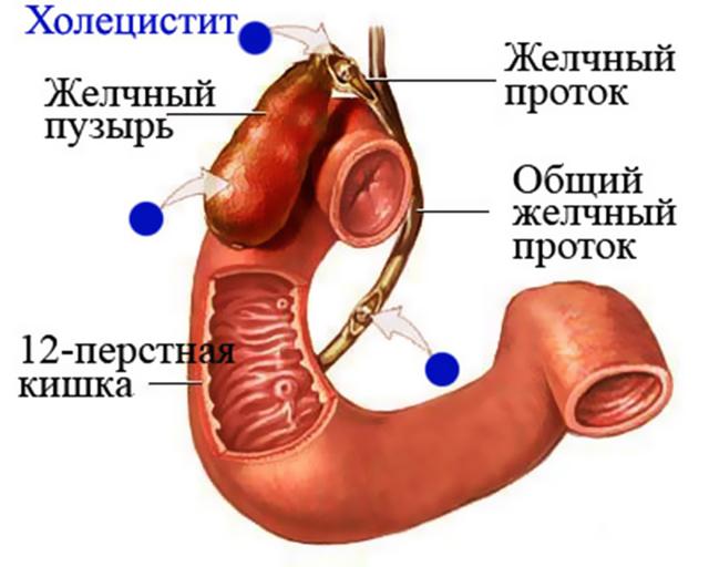 Хронический билиарнозависимый панкреатит - лечение и симптомы