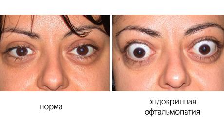 Эндокринная офтальмопатия: лечение с хирургической операцией, народными средствами