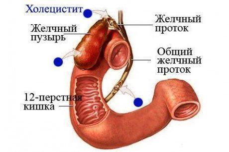 Холецистит и диабет: причины развития, питание, чем грозит острый калькулезный холецистит на фоне сахарного диабета
