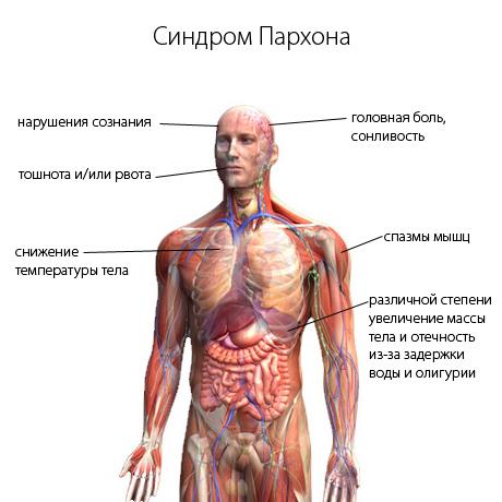 Синдром Пархона: симптомы, диагностика, лечение