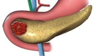 Панкреатит: протокол лечения и диагностики у взрослых