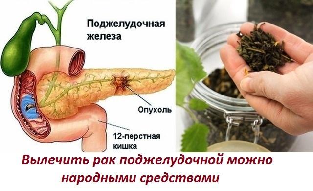 Лечение рака поджелудочной железы народными средствами